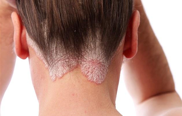 vichy dermatita seboreica tratament